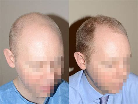hair plugs for men hair transplants for men photos miami fl patient 37511