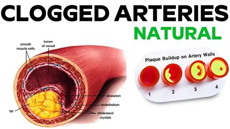 blocked arteries and open surgery blocked arteries cured health tips