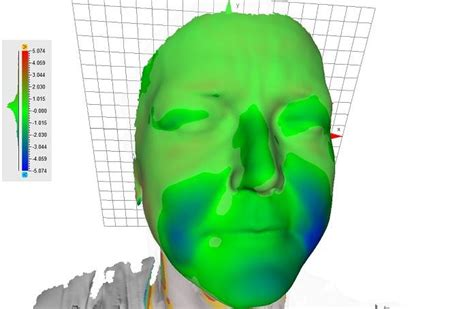 Sleeping Mask Model Kodok digital maison uses artec to design and print sleep mask for graves disease patient