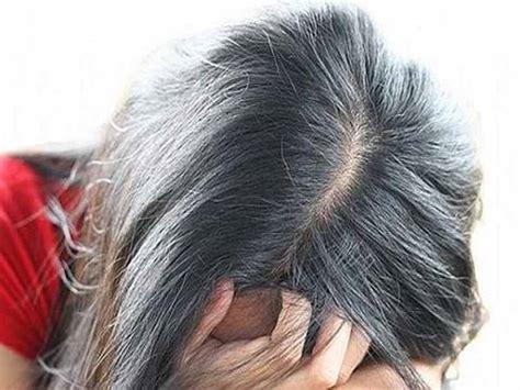 Obat Vitamin Pelurus Rambut rambut rontok karena terapi hormon endrolin