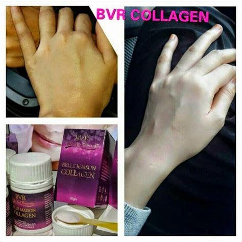 Bvr Collagen Indonesia bvr collagen harga murah giler kosmetik murah giler