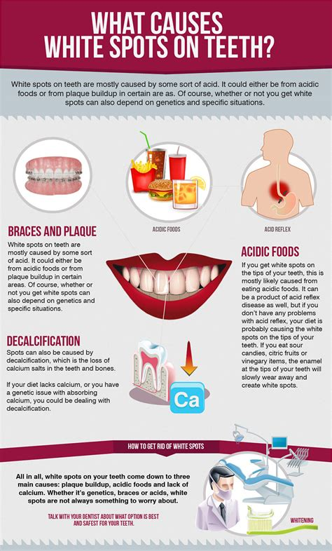 spot causes what causes white spots on teeth