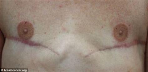 Nipple Tattoo Baltimore   maryland tattoo artist transforming mastectomy patients