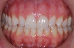 what color should your gums be dentist winnipeg in winnipeg therapy winnipeg