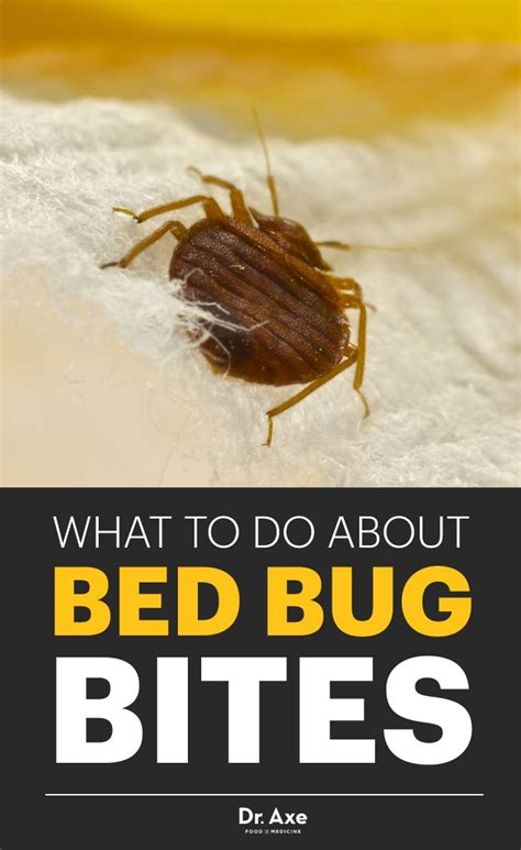 how to soothe bed bug bites 1000 ideas about identifying bug bites on pinterest