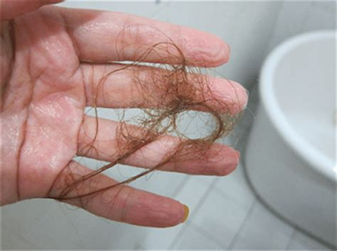 Am I Shedding Much Hair by Oh God I Am Losing Much Hair Endhairloss Eu