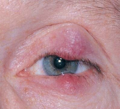 blepharitis images blepharitis causes treatment pictures symptoms