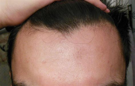 temple hair regrowth black hair can temple thinning occur without noticing any hair loss