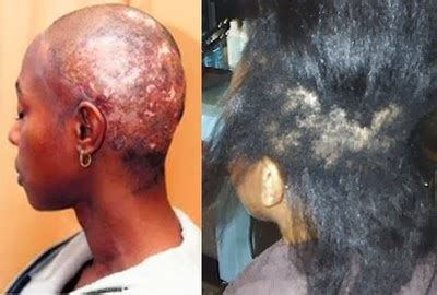 can you get a elaxer with alopecia naturally growing step by step hair relaxers why you
