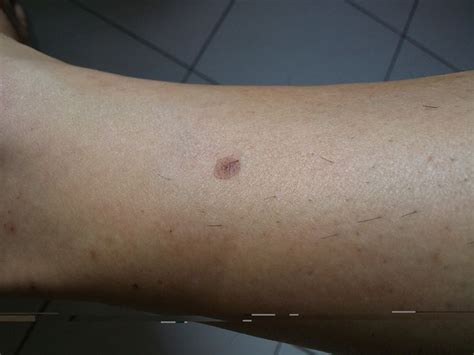 rash and bumps on legs breeds picture