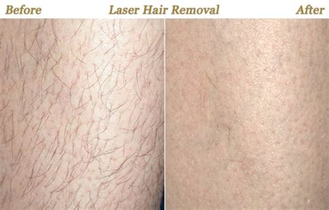 Palomar Laser For Hair Removal | undesirable hair skin and beyond professional skincare