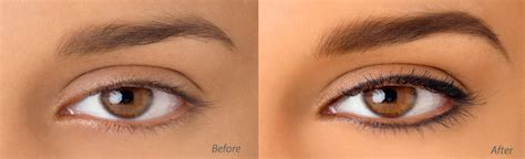 tattoo eyebrows nz cosmetic tattoo botox dermal filler appearance