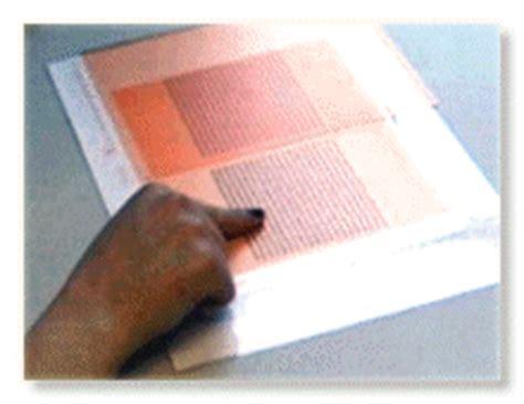 pattern glare dyslexia burnett hodd dyslexia