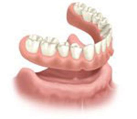 comfort dental lafayette colorado dental implants dentist boulder tooth replacement