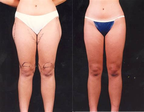 liposuction inner thighs thigh knee lipo thigh and knee liposuction to try in