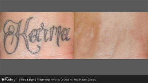 new tattoo removal laser ink picosure laser removal specialists