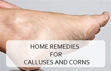 calluses on pictures stunning how to get rid of