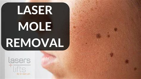 laser mole removal youtube