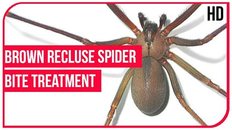 home remedies for brown recluse bite 28 images brown