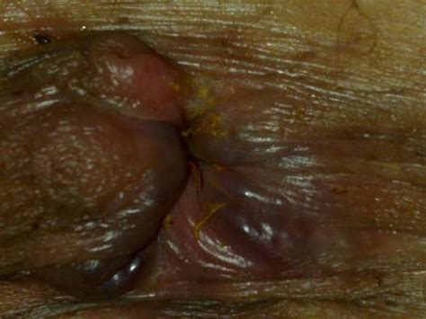 hemorrhoid what they look like piles pictures photos images what do piles look like
