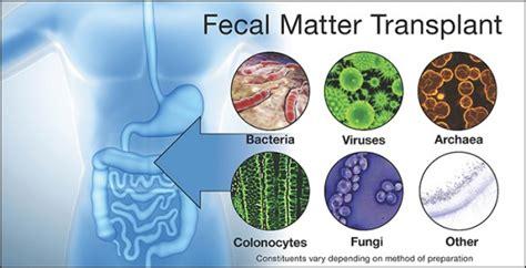 Stool Donation by These Days Fecal Transplantation Is No Joke Vanderbilt News Vanderbilt