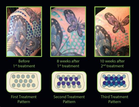 tattoo removal gold coast 28 laser removal coast 100 laser