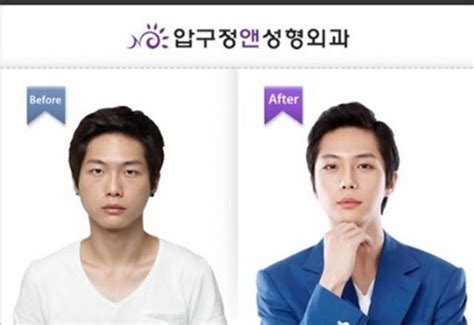 imagenes de coreanos y chinos cirug 237 a pl 225 stica en corea antes y despu 233 s marcianos