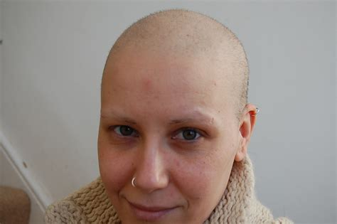 hair loss after chemotherapy hair loss from chemotherapy
