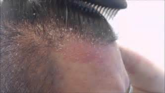 can you a haircut i youve got psorisiis metal comb vs scalp psoriasis youtube