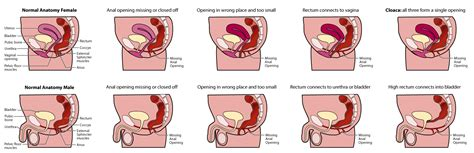 there are at least 8 types of vaginas which one is yours department of surgery imperforate anus