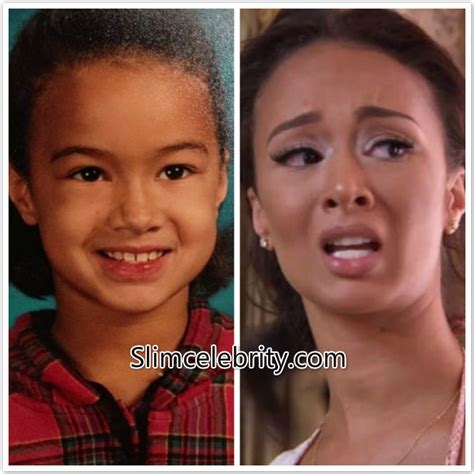 Next Facelift For Your Teeth 2 by Draya Michele Before And After Surgery