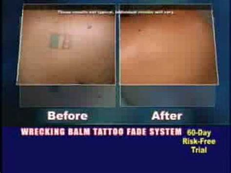 tiger balm tattoo removal wrecking balm removal fade complete system