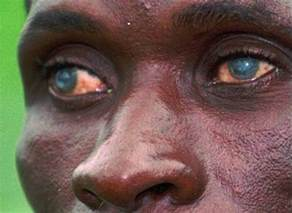 river blindness pictures onchocerciasis causes symptoms treatment and prevention