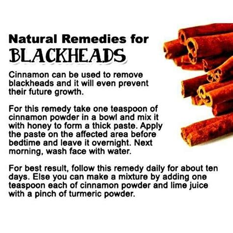 remedies for blackheads who knew