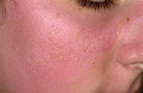 allergies treatment sun allergy rash pictures causes and treatment