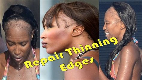 how to fix a womans thinning hair on top how to repair thinning hair edges thicken hairline