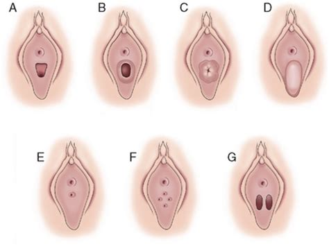 different sizes and shapes of viginal and hymen with pictures hymen pediatric images usseek com