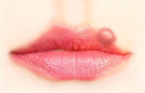 best herpes treatment 187 the best treatment for your cold sores