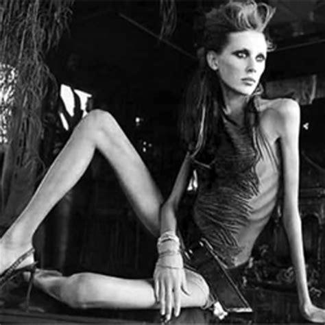 imagenes impactantes de anorexia y bulimia quierete y te querran campa 209 as contra la anorexia y bulimia
