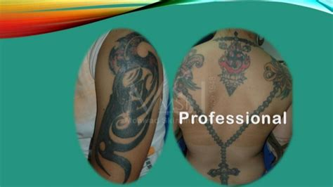 tattoo removal york pa 100 top 5 best laser tattoo people have different