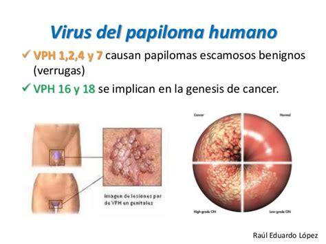 el virus del papiloma humano vph es tan comn como una base molecular de la carcinogenia enmultiples pasos