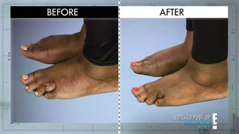 by nature before and after botched woman with toe deformity has it utated after years of