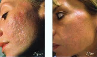 natural topical treatment for acne skin resurfacing acne
