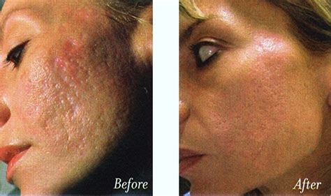 fractional skin resurfacing for treating acne scars