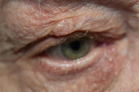 eyelid tumor utah s eyelid surgery specialists skin cancer and tumors