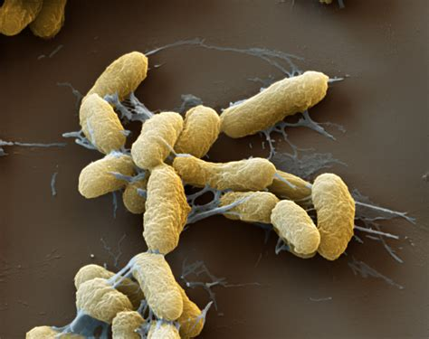 Y Pestis plague is still alive and well discovermagazine