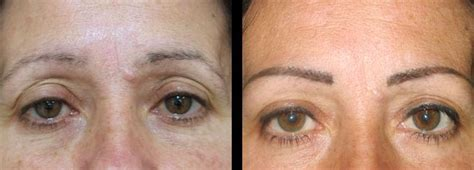 eyebrow tattoo removal cost permanent eyebrows before and after three weeks jpg