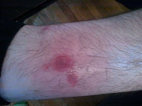 infected bed bug bite infected insect bites pictures to pin on pinterest pinsdaddy