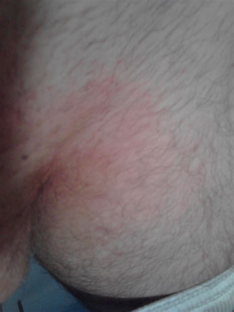 shaving male genital area male yeast infection pubic area guide