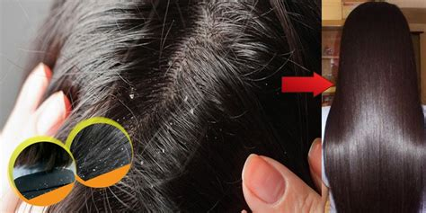 how to get rid of dandruff how to get rid of dandruff simple home remedies